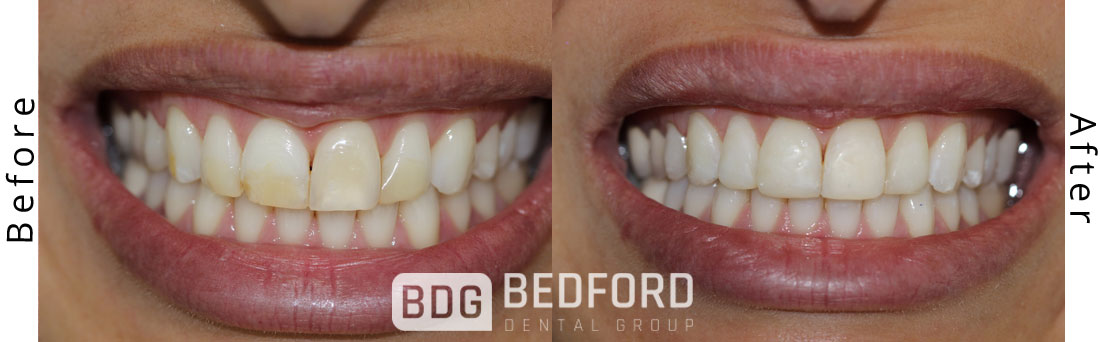 Efficient Dental Cleaning before and after