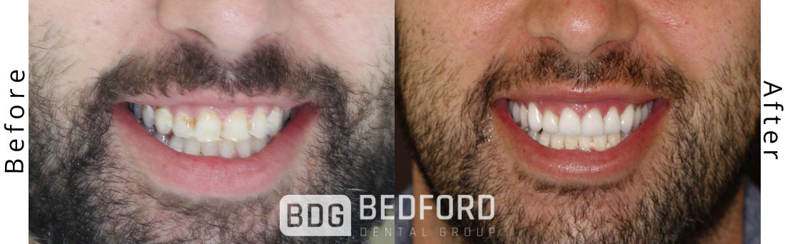 Benefits Of Scheduling A Routine Cleaning With Bedford Dental Group
