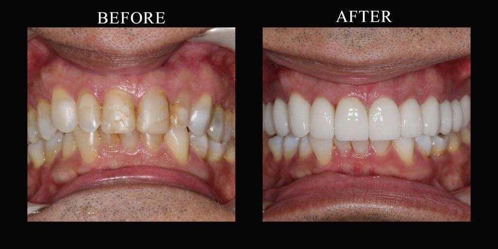 A full porcelain crown that looks just like a natural tooth can then be placed on top of the prepared core. It replaces the removed structure completely. And since it is one solid piece cemented to the tooth, it provides additional strength for the tooth. Of course, it also makes it look much better!