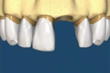 Fragments of the tooth are removed