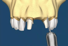 The two adjacent teeth are grinded down.