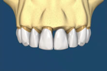 The bridge would fit over the teeth and replace the missing tooth