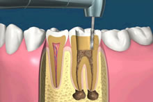 The inner part of the tooth, called the pulp, has been affected due to a large cavity in this example. The infection has extended beyond the root and created bone destruction at the apex (tip of the root).