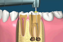 Small files are used to remove the decayed areas and any remaining pulp. This can be done using a specialized drill.